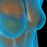 DIEP Flap Breast Reconstruction